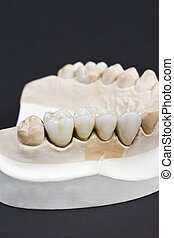 dental ceramic bridge - closeup for a dental ceramic bridge...