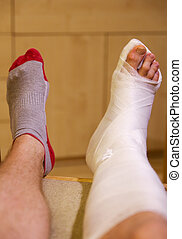 Broken leg in gypsum - Broken ankle in hwite gypsum