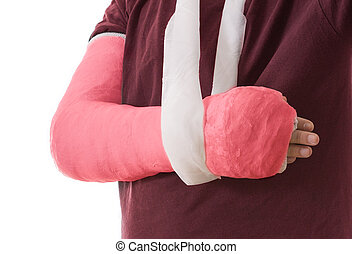 Broken arm in red plaster cast and sling - Arm cast - bright...
