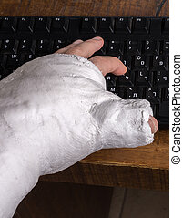 Person with arm cast typing on a keyboard