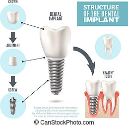 Dental Implant Structure Medical Infographic Poster - Dental...