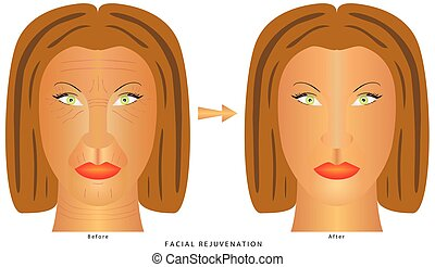 Face changes (wrinkles).eps - Woman's face before and after...