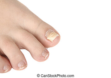 reconstruction nail, nail that went down with a finger -...
