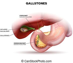 Stones in the Gallbladder and anatomy of other surrounding...