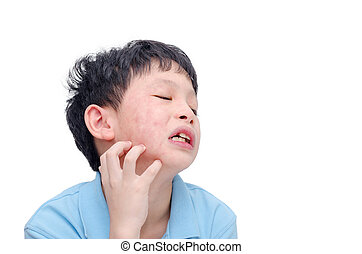 boy scratching his allergy face - Young asian boy scratching...