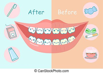Before and after teeth, great for health dental care concept