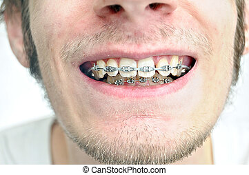 Braces Closeup - Closeup of a mans teeth with braces on