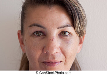Woman with bruise and black eye