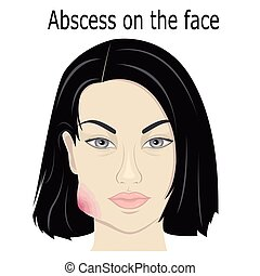 Abscess on the face - Illustration abscess on the face of a...