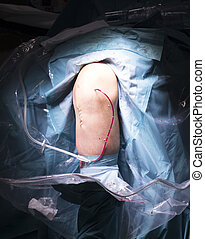 Surgical operation knee surgery - Surgical operation knee...