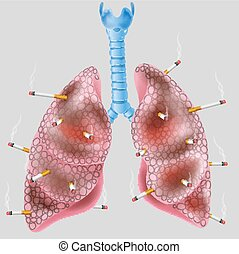 Cigarette on the lung - Vector illustration of Cigarette on...