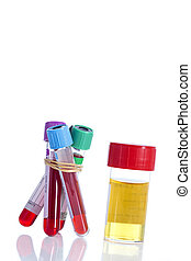 Urine and blood sample on a form for examination - Urine and...