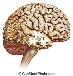 Manifestación cerebral en Alzheimer - Ilustración...