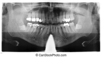 dental roentgenography of a midage man with corrections
