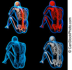 3D rendering skeleton of the man with the backbone