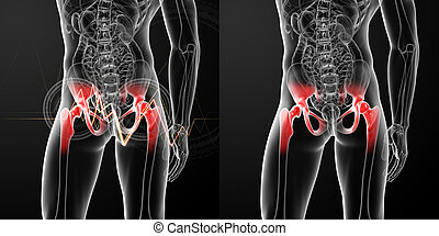 3D rendering medical illustration of a painful hip joint
