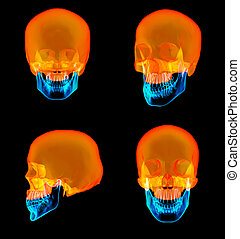 3D rendering of human Skull Upper half