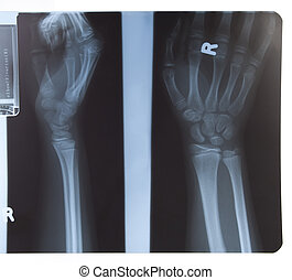 x-ray of hand and forearm - x-ray of human hand and forearm...