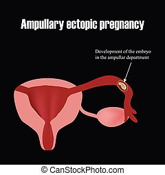 Development of the embryo in the ampullar department....
