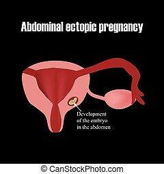 Development of the embryo in the abdomen. Ectopic pregnancy....