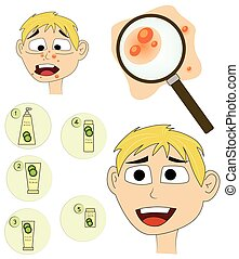 Boy acne treatment before and after. - Vector illustrated...