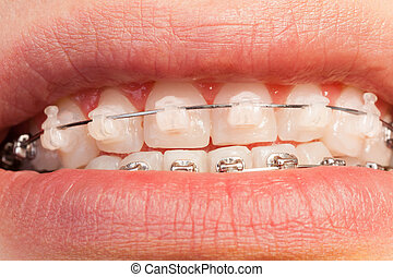 Ceramic and metal orthodontic cases on teeth - Close-up...