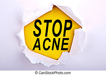 Words Stop Acne on ripped paper - Business, technology,...