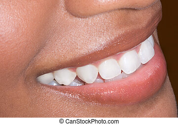 Ethnic black African-American woman teeth closeup - Close up...