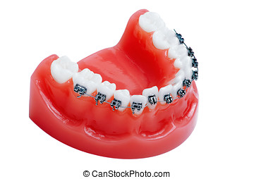 Denture with braces , lower jaw , isolated on white