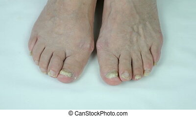 Onychomycosis fungal nail infection of foot