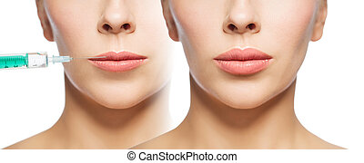 woman before and after lip fillers injection - people,...