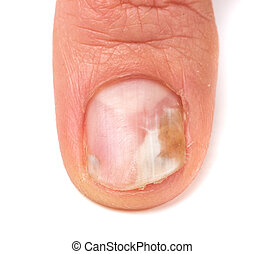 one finger of the hand with a fungus on the nails isolated...