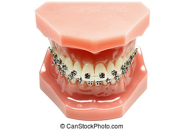 tooth model with metal wired dental braces isolated on white...
