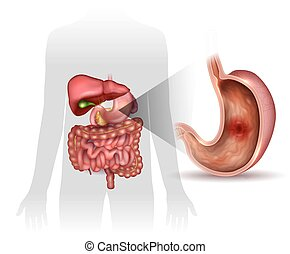Stomach ulcer, interanal organs anatomy colorful drawing