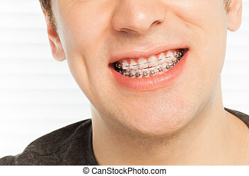 Happy man's smile with orthodontic cases - Close-up portrait...