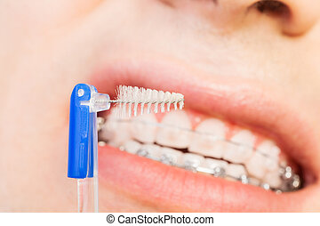 Special interdental brush for braces - Close-up picture of...