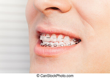 Man's smile with dental braces on teeth - Side view of man's...