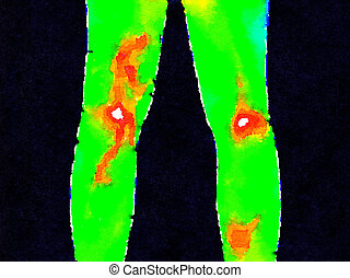 DW Legs thermography - Thermographic image of the backs of...