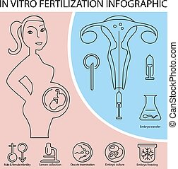 In vitro fertilization infographic