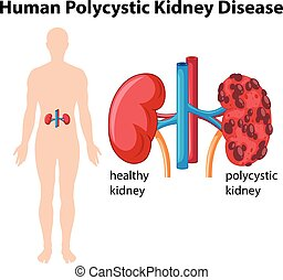 Diagram showing human polycystic kidney disease