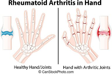 Diagram showing rheumatoid arthritis in hand illustration