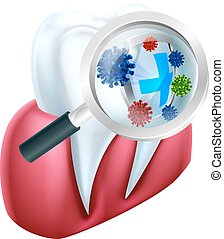 Tooth Protection Shield - A medical illustration of a tooth...