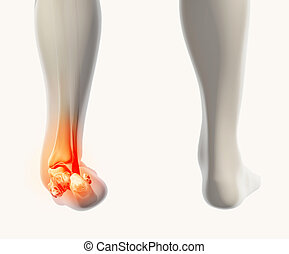 Ankle painful - skeleton x-ray. - Ankle painful - skeleton...
