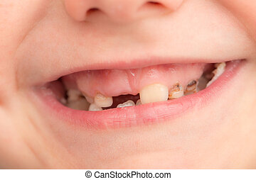 teeth in children. close-up