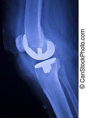 Knee joint implant xray