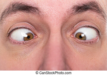 man is squinting, closeup, concept strabismus - adult man is...
