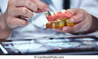 Denture Model - Dentist Shows Model Of Dental Prosthesis...