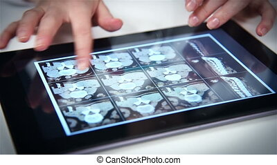 X-ray Of Spine On Tablet Screen - Doctor Examines An X-ray...