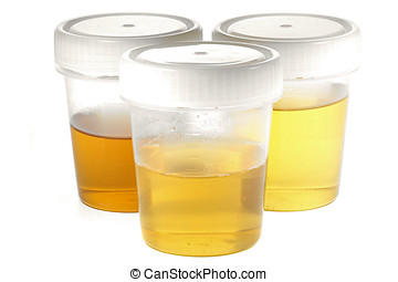 urine test - specimen cups for urinalysis isolated on white...