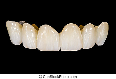 Dental ceramic bridge on isolated black background